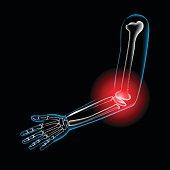 Arm bone and finger bone,pain,x ray