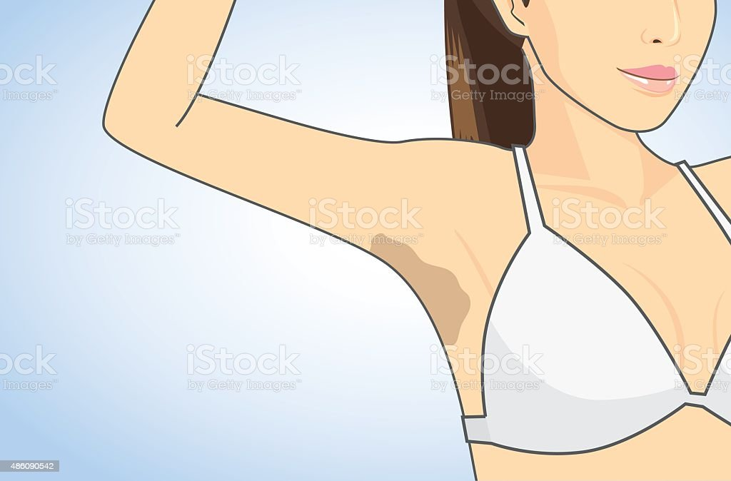 Armpit skin discoloration向量藝術插圖