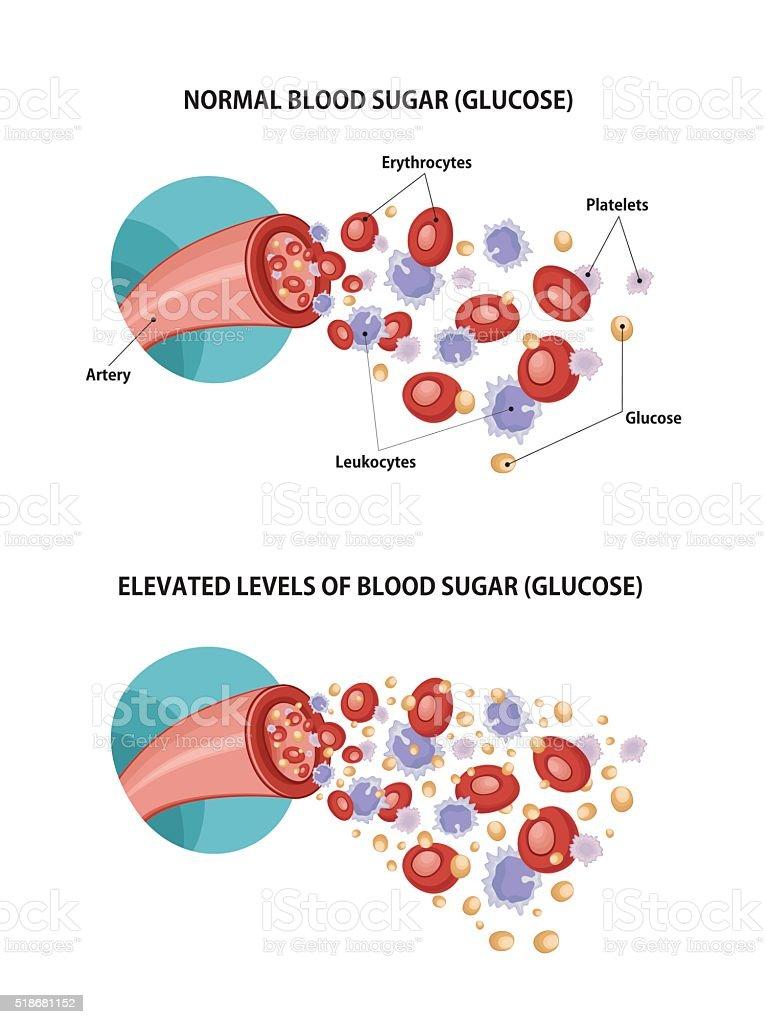 Artery and diabetes vector art illustration