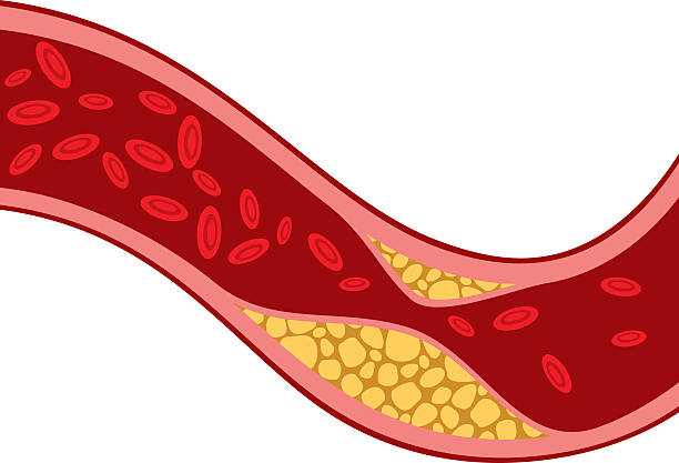 artery blocked with cholesterol (blood pressure, arteriosclerosis) artery blocked with cholesterol vector illustration (blood pressure design, the structure of a vein with plaque - arteriosclerosis) cholesterol stock illustrations