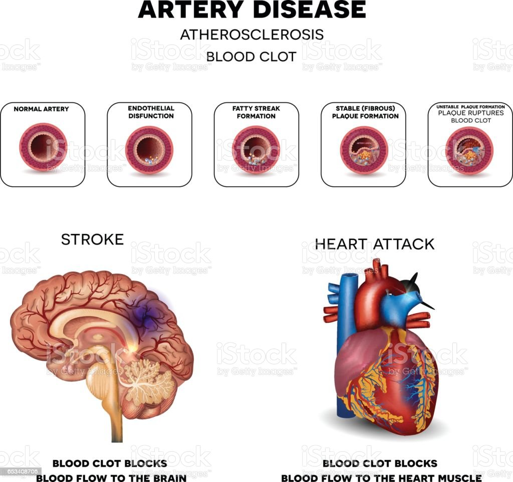 Artery Disease Atherosclerosis Stroke And Heart Attack. Bright Yellow Signs Of Stroke. Girl Signs. Portable Signs. Internal Carotid Artery Signs Of Stroke. Greek Mythology Signs Of Stroke. Shoe Signs Of Stroke. Door Signs. Heart Failure Signs Of Stroke