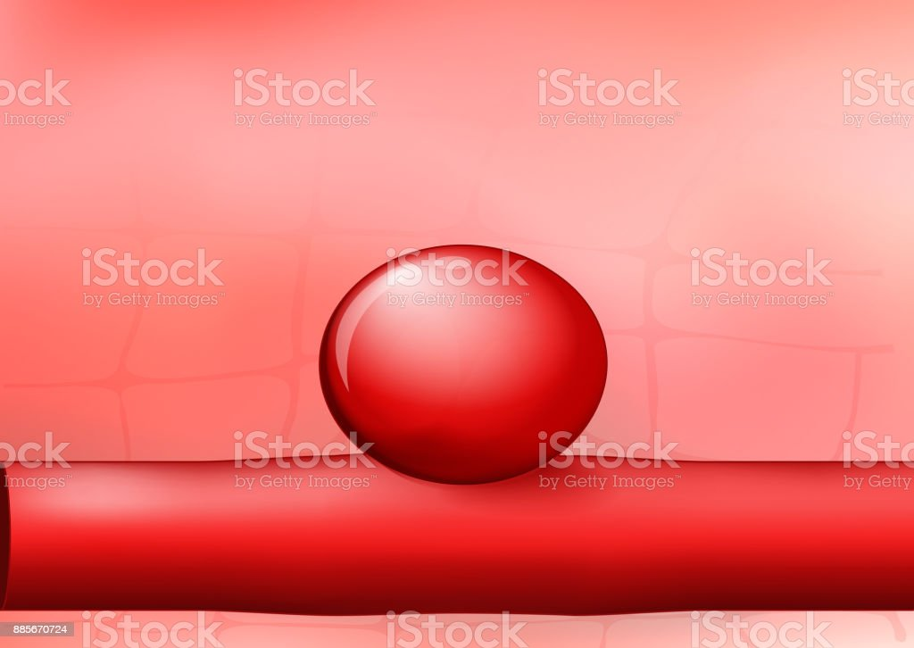artery with an aneurysm on red background vector art illustration