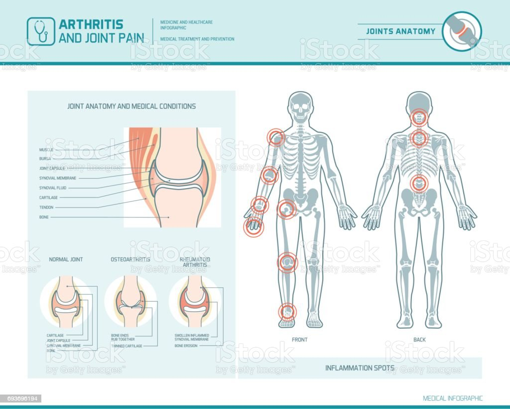 Arthritis and joint pain infographic vector art illustration