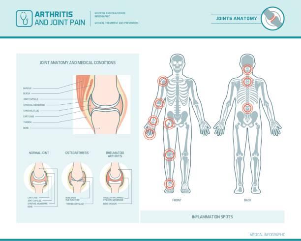 ilustrações, clipart, desenhos animados e ícones de infográfico de dor de artrite e conjunta - ortopedia