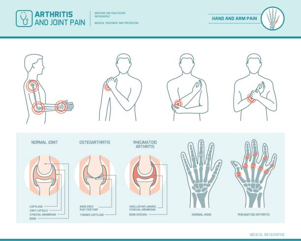 Arthritis and joint pain vector art illustration