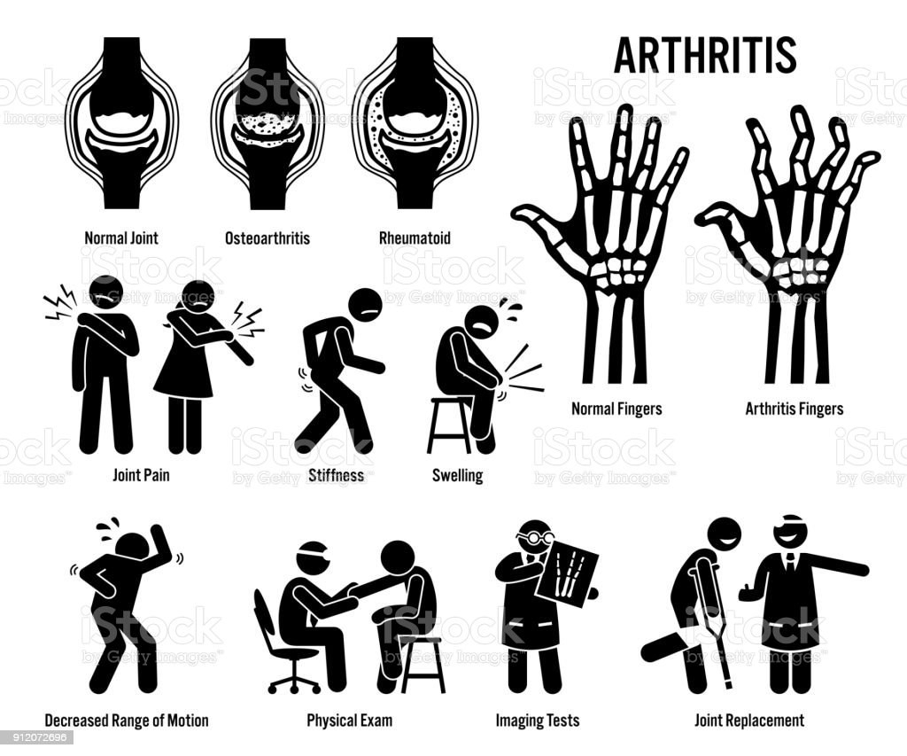 Arthritis, Joint Pain, and Joint Disease Icons. vector art illustration