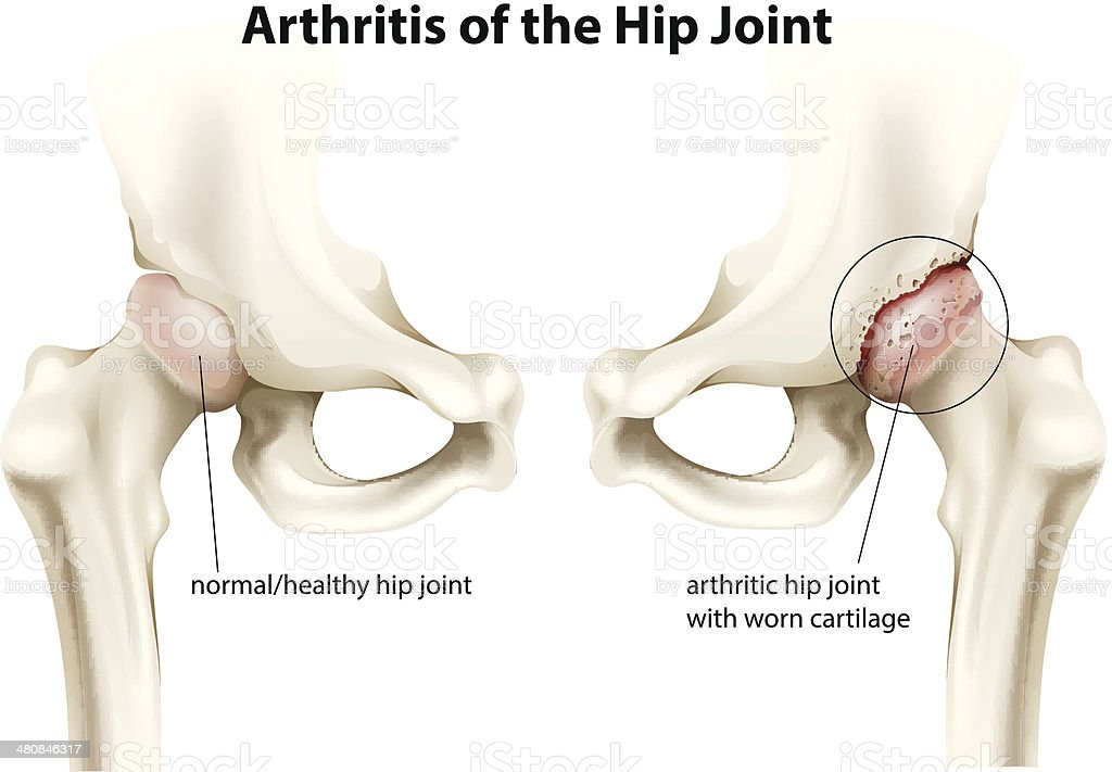 Arthritis of the hip joint vector art illustration