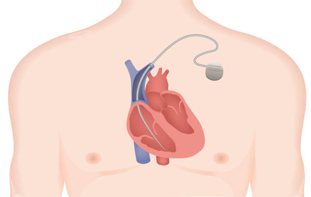 Artificial cardiac pacemaker vector illustration. Implantable Cardioverter Defibrillator Implantable Cardioverter Defibrillator vector illustration pacemaker stock illustrations
