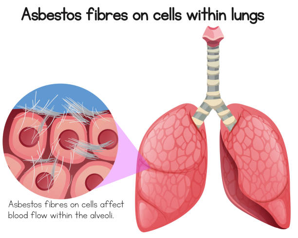 Asbestos Fibres on Cells Within Lungs Asbestos Fibres on Cells Within Lungs illustration alveolar duct stock illustrations