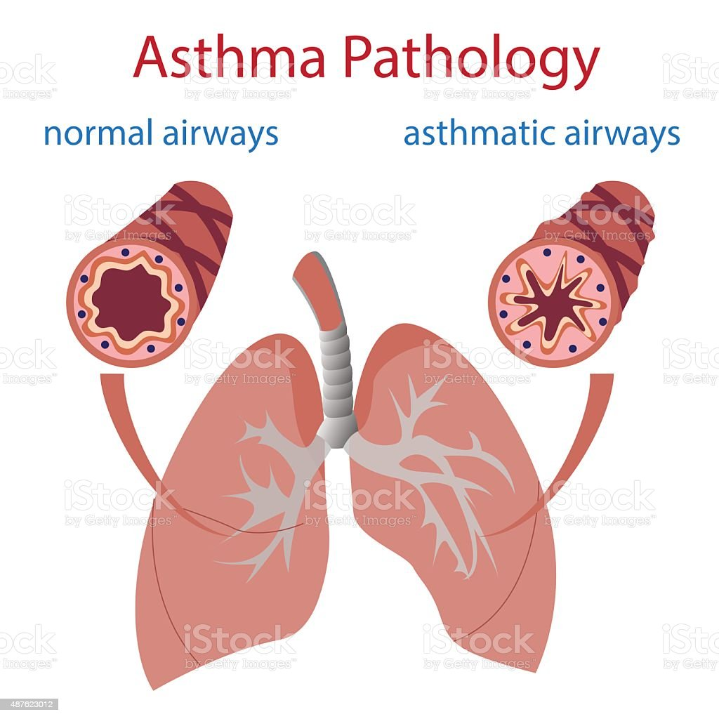 asthma pathology vector art illustration