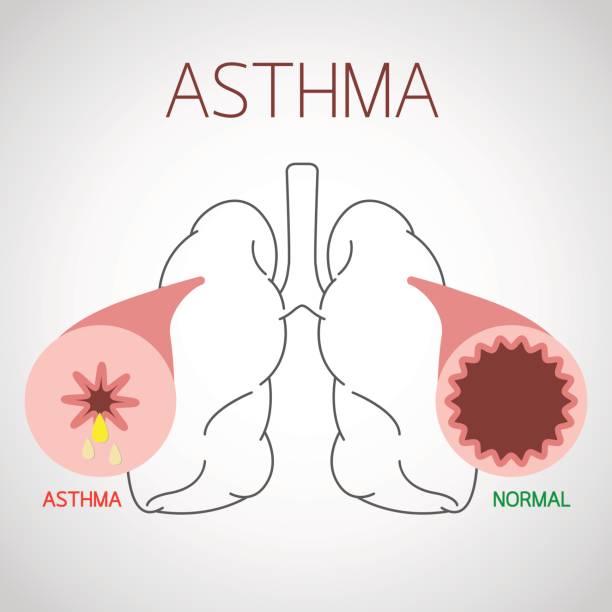 Asthma vector icon illustration vector art illustration