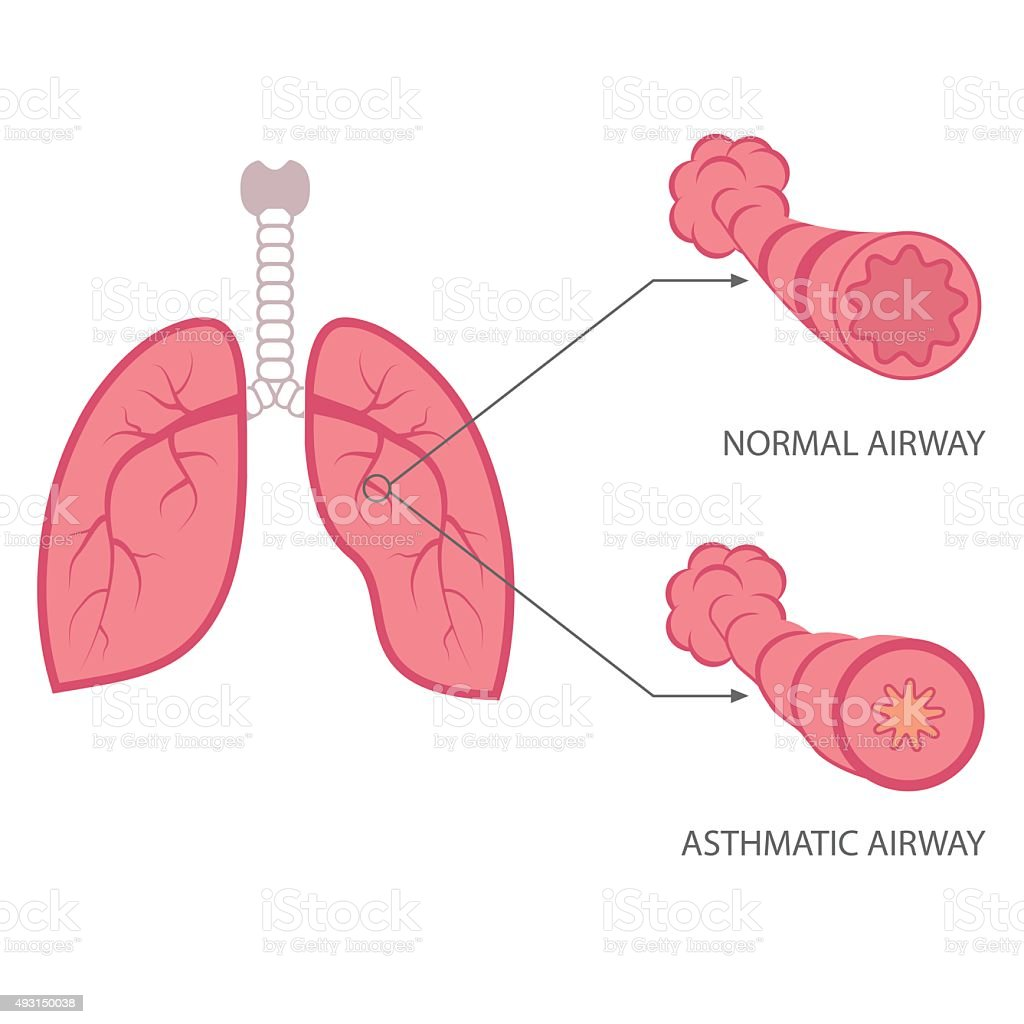 asthma vector art illustration