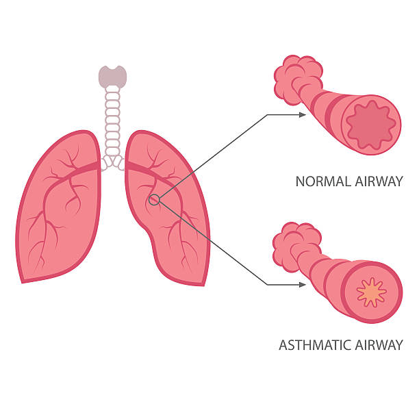 asthma vector asthma illustration, bronchial, lungs respiratory disease, respiratory tract stock illustrations