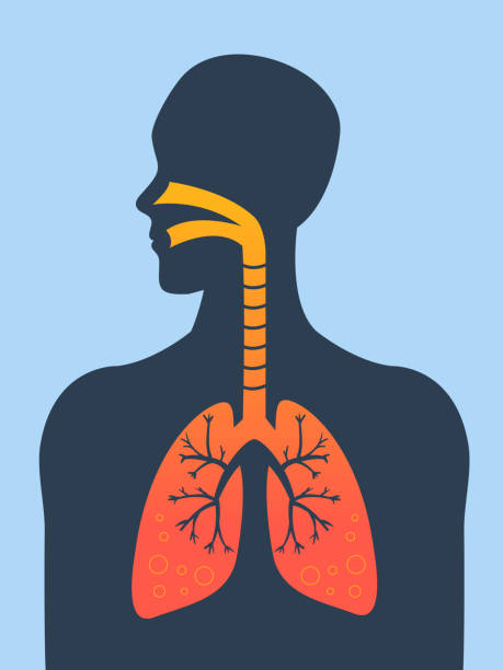 Asthma Human silhouette with inflamed respiratory system (lungs) showing diseases like asthma and bronchitis vector illustration. respiratory tract stock illustrations