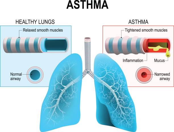 Asthma Asthma is a chronic inflammatory disease of the airways that is characterized by narrowing of the airways bronchospasm and coughing. Humans lungs and bronchi respiratory tract stock illustrations