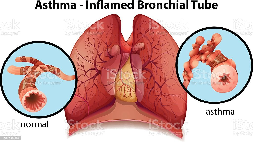 Asthma-inflamed bronchial tube vector art illustration