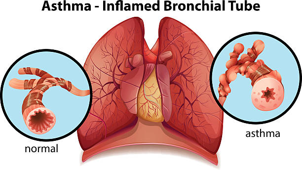 Asthma-inflamed bronchial tube An image of an asthma-inflamed bronchial tube on a white background respiratory tract stock illustrations