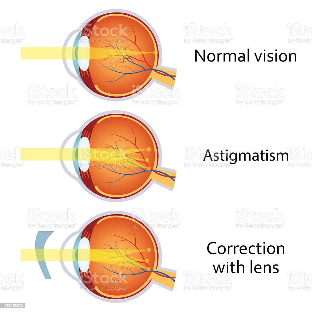 Astigmatism Corrected By A Cylindrical Lens Stock Vector Art & More ...