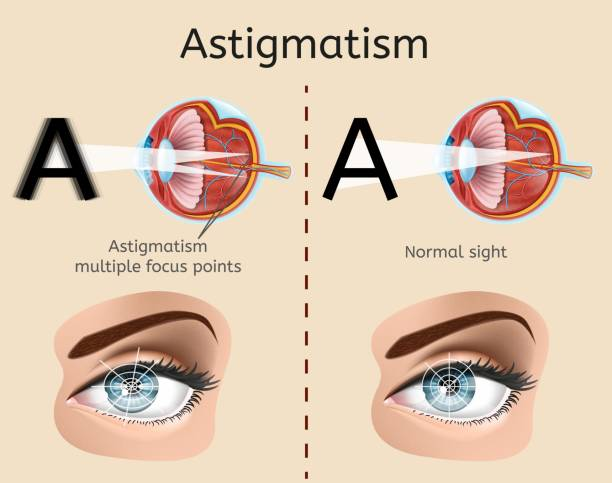 Astigmatism Medical Vector Diagram or Scheme Astigmatism Vector Diagram with Human Eye Cross Section Anatomical Illustration and Difference Demonstration of Impaired Vision and Normal Sight. Eyesight Defect, Eye Disease Diagnosis Medical Scheme medical diagram stock illustrations
