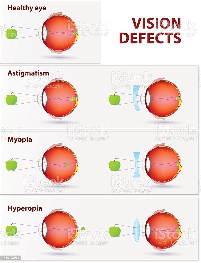 Astigmatism, Myopia and Hyperopia Vision disorders. Astigmatism, Myopia and Hyperopia 2015 stock vector