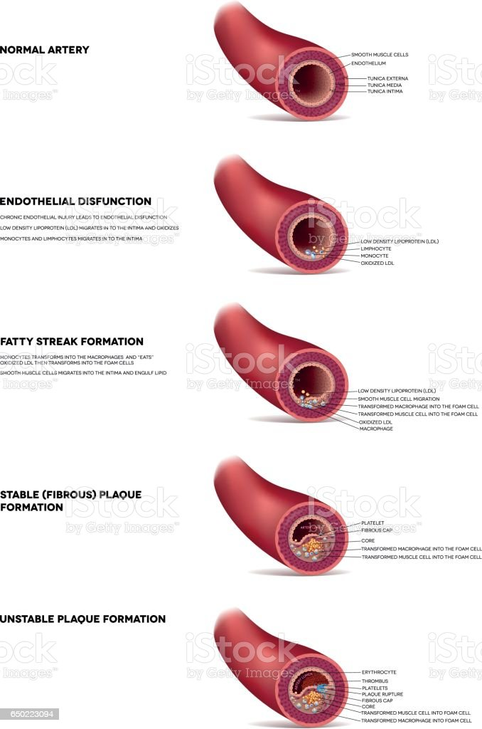 Atherosclerosis detailed illustration, progression till Thrombus vector art illustration