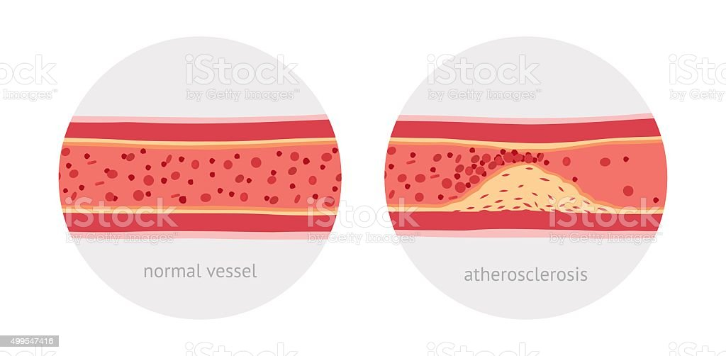 Atherosclerosis in vessels vector art illustration
