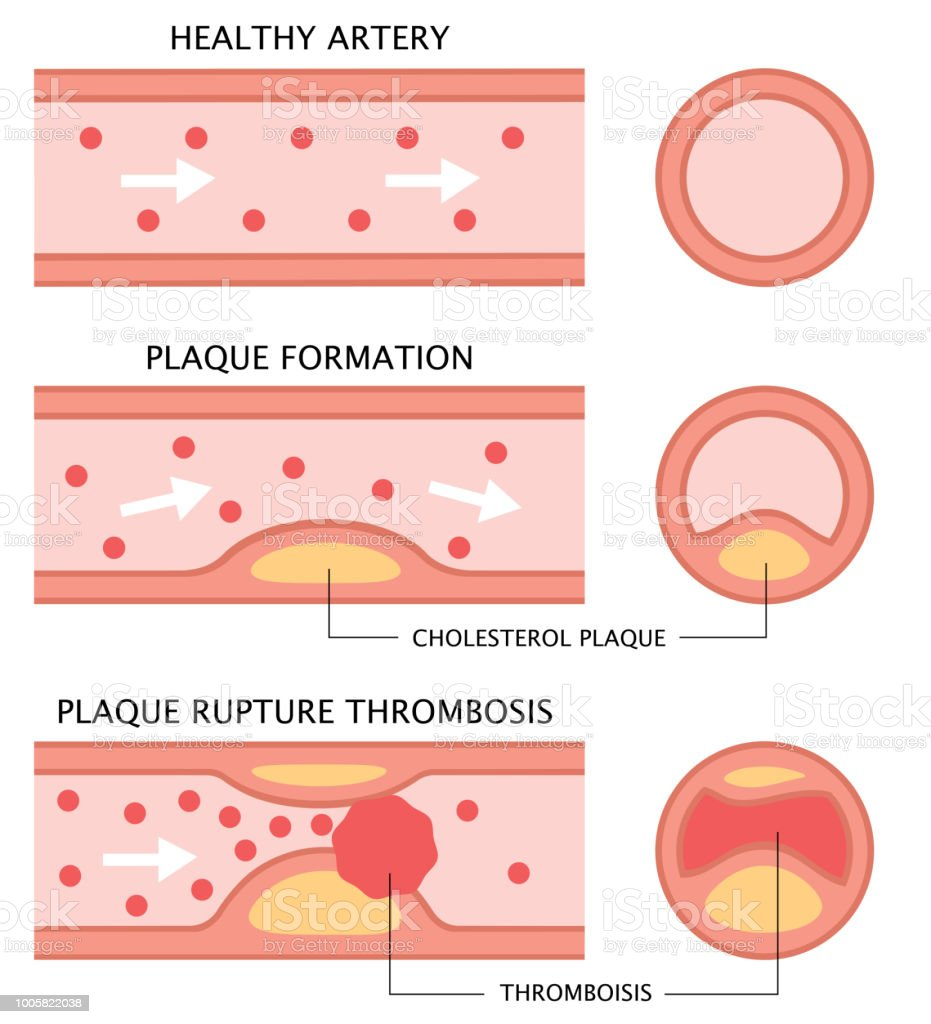 Atherosclerosis Stages Healthy Artery Plaque Formation And