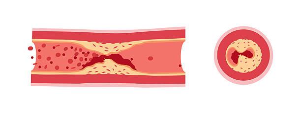 ilustrações, clipart, desenhos animados e ícones de atherotrombosis em embarcações - colesterol