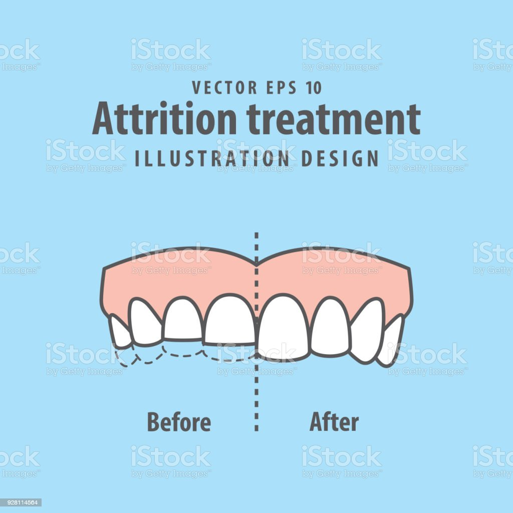Attrition treatment comparison illustration vector on blue background. Dental concept. vector art illustration