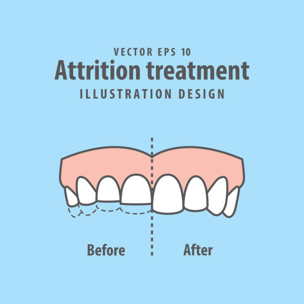 illustrations, cliparts, dessins animés et icônes de attrition traitement comparaison illustration vectorielle sur fond bleu. concept dentaire. - orthodontiste
