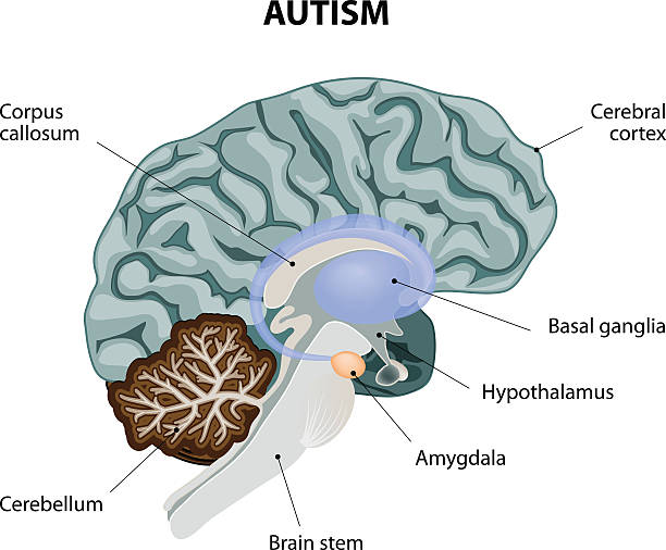 autism Parts of the brain affected by autism. Vector diagram brain stem stock illustrations