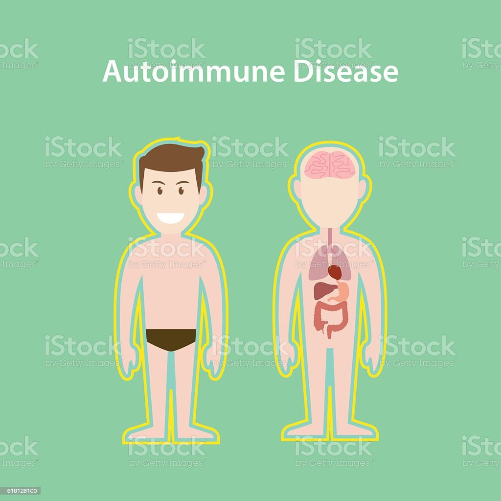 Autoimmune Disease System Illustration With Cartoon Human Man Body