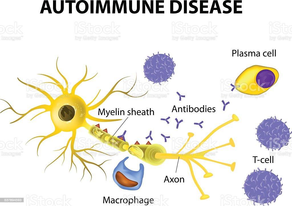 Autoimmune Disease. The mechanisms of neuronal damage in multiple sclerosis vector art illustration
