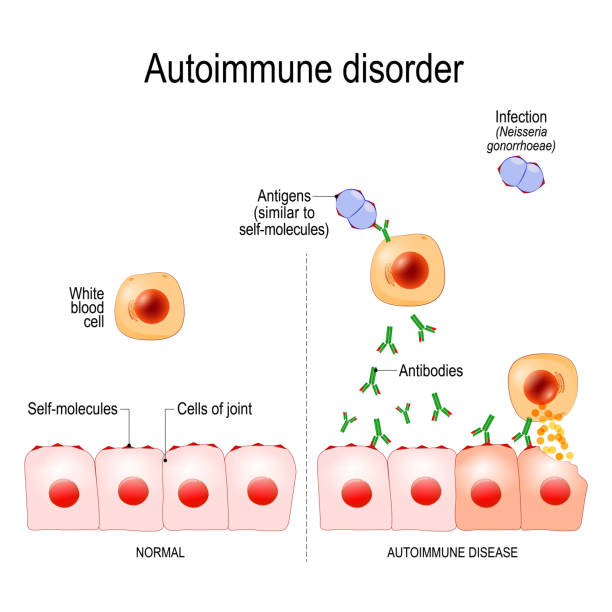 Autoimmune disorders Autoimmune disorders. For example Gonorrhea (sexually transmitted infection) and Arthritis. Antigens of bacterium Neisseria gonorrhoeae are similar to self-molecules of healthy joint cells. normal immune response can result in the production of antibodies that bind to healthy cells of joint, and caused of inflammation antibody stock illustrations