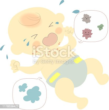 Illustration of a baby crying with rough skin around the neck
