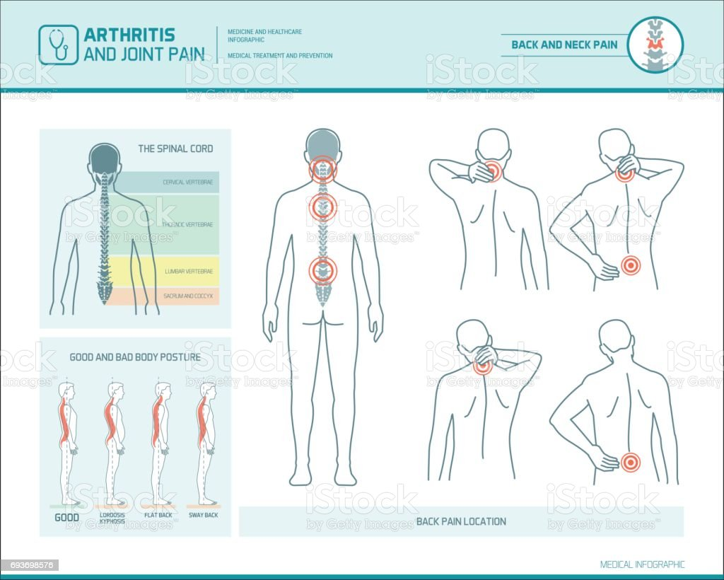 Back pain infographic vector art illustration