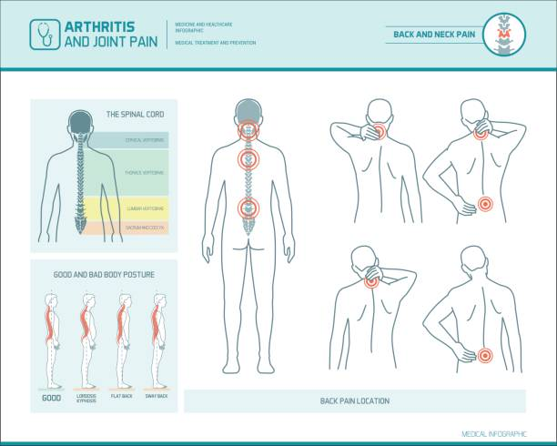 Back pain infographic Back pain and body posture infographic with anatomical illustrations backache stock illustrations