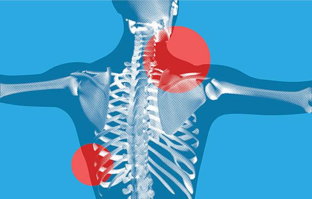 ilustrações de stock, clip art, desenhos animados e ícones de esqueleto xray com costas - tronco nu