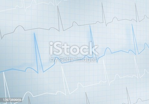istock Background in the form of a cardiogram on a mesh background. Medical theme for the design of posters, banners, web illustrations 1297389959