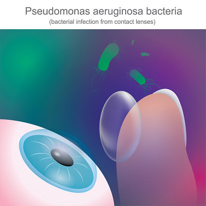 Bacterial infections from contact lenses, Is resistant to antibiotics.