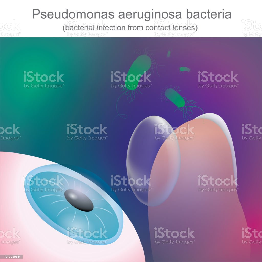 Bacterial infections from contact lenses, Is resistant to antibiotics. vector art illustration