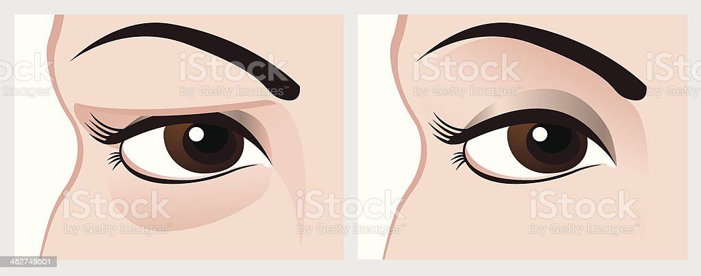 Baggy eyes before and after treatment. vector art illustration