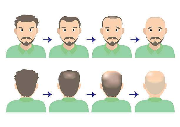 balding head A vector art illustration