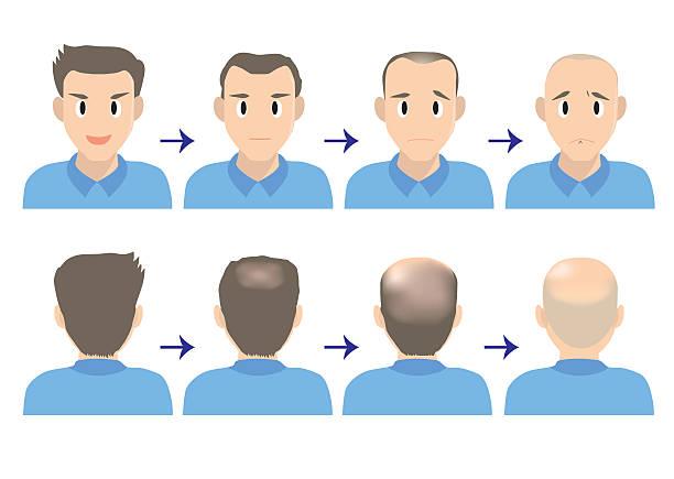 balding head B vector art illustration