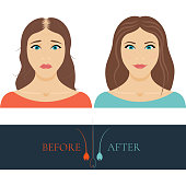 Balding woman before and after hair treatment