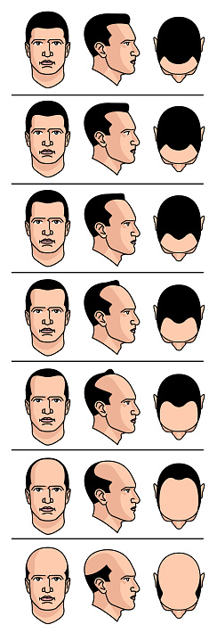 Baldness diagram