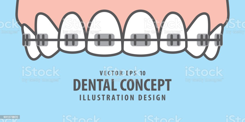 Banner Upper Braces teeth illustration vector on blue background. Dental concept. vector art illustration