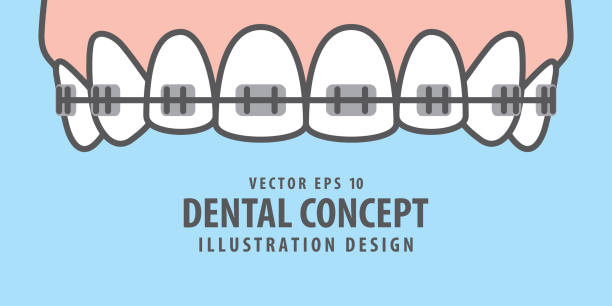 banner upper braces teeth illustration vector on blue background. dental concept. - orthodontist stock illustrations, clip art, cartoons, & icons