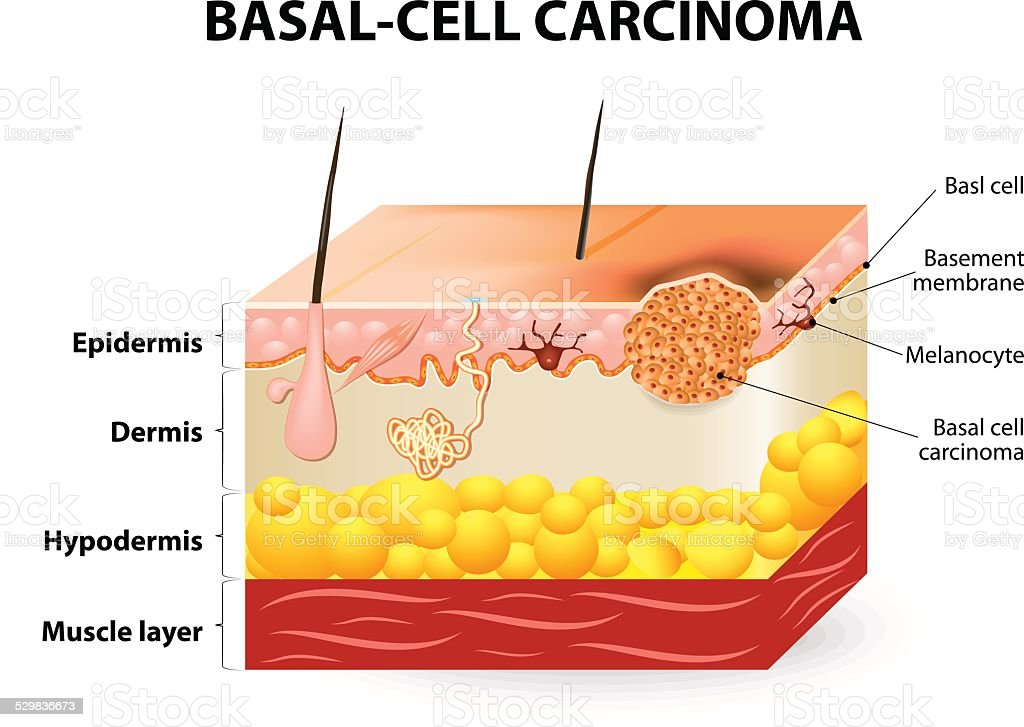 Basal-cell carcinoma or basal cell cancer vector art illustration