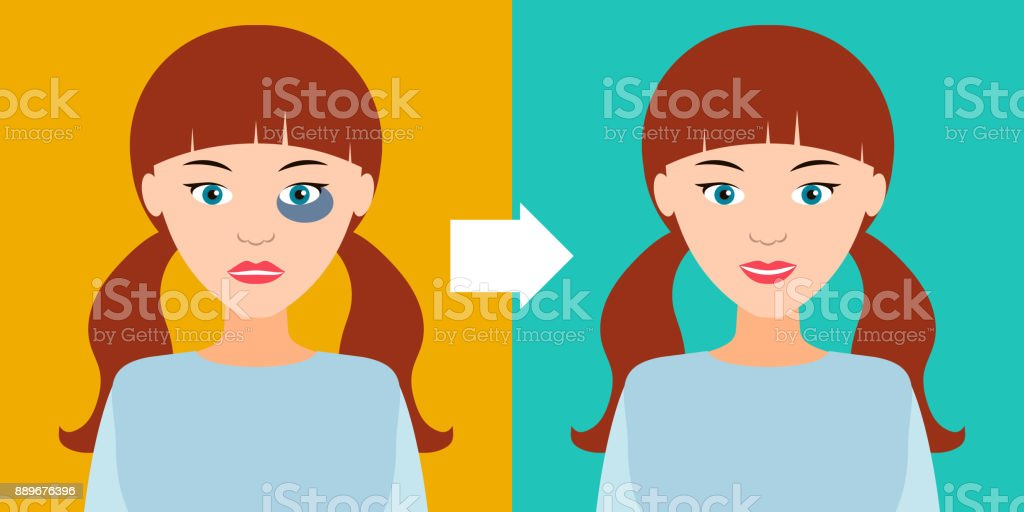 Beautiful girl with a bruise and without. Vector illustration. vector art illustration